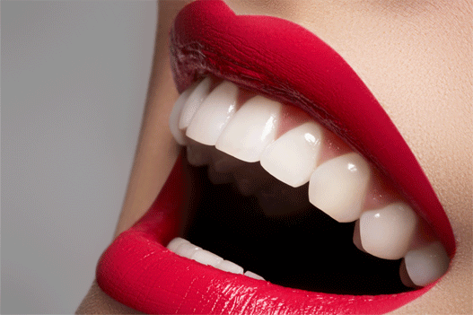 sourireblanc-1