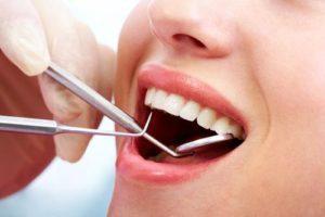 teeth-cleaning-sherman-oaks-2